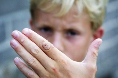 Actinische keratose: gel lijkt aanwinst
