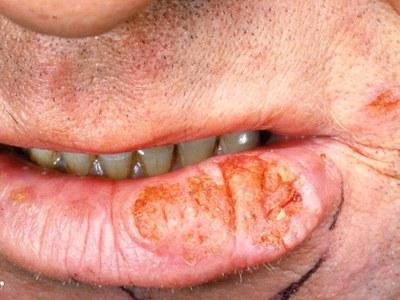 Antihypertensiva geven lipkanker