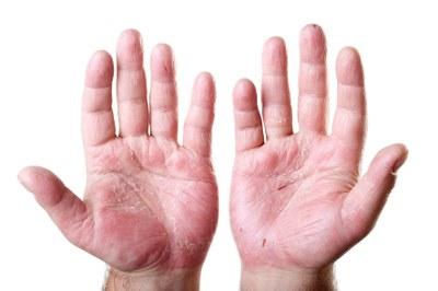 Artritis psoriatica: ustekinumab helpt