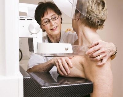 SERM's voorkomen borstkanker