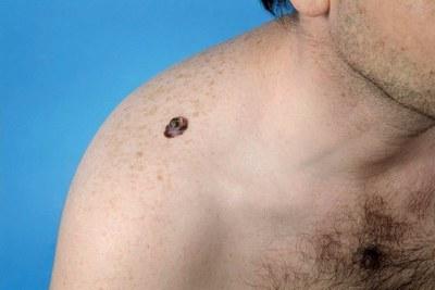 TNF-alfaremmer + RA: risico melanoom