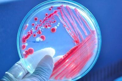Antibiotica niet meer leverbaar