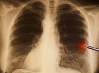 Baat bij nivolumab bij longtumor type NSCLC