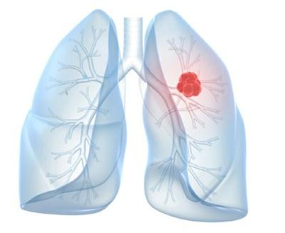 Longkanker: nivolumab  beter dan docetaxel