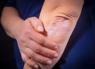 CV-risico psoriasis gelijk aan DM
