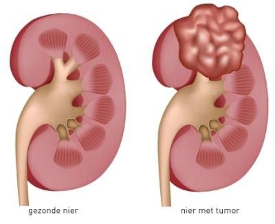 Nierkanker: sunitinib, maar ook everolimus