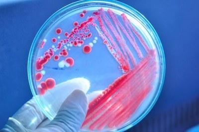 Schippers investeert miljoenen in nieuwe antibiotica