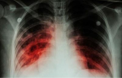 Tbc: kinetiek maakt ertapenem kansrijk