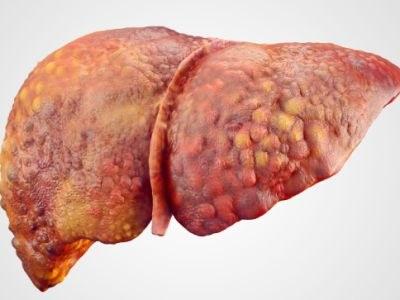 Geen daclizumab bij leverschade