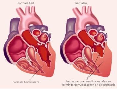 Hartonderzoek voortzetten na trastuzumab