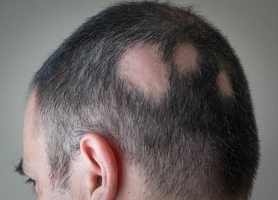 Amper behandelopties bij alopecia