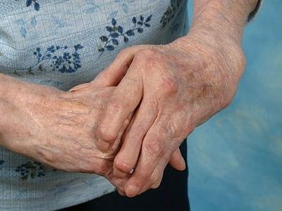 Patiënt kent biosimilar