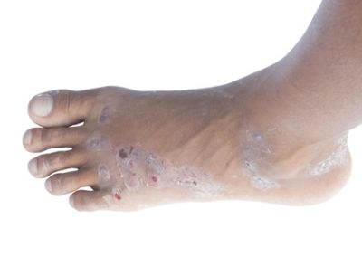 S-1: minder hand-voetsyndroom