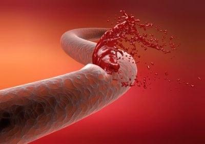 Slangengif stopt bloeding bij DOAC-gebruiker