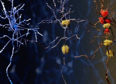 Weer een alzheimer-studie gestopt