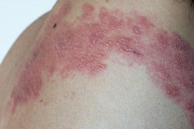 Antiviraal middel alleen bij gordelroos in gezicht — PW ...