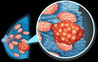 Genoomprofilering bij borstkanker nuttig