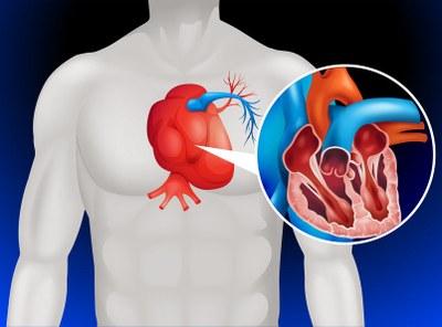 Inhibin voortaan op recept door ernstige hartproblemen