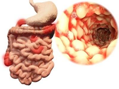 Onderzoek methotrexaat bij ziekte van Crohn