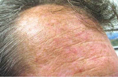 Fluorouracil meest effectief bij actinische keratose