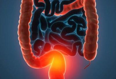 Haaruitval bij tioguanine voor darmziekten