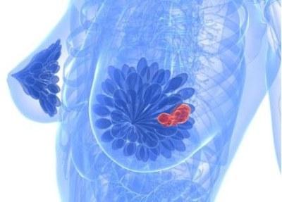Olaparib nu ook als monotherapie bij borstkanker
