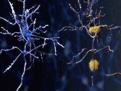 Risico ziekenhuisopname bij Alzheimermiddel