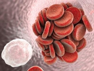 Tromboserisico: voorzichtig met tofacitinib