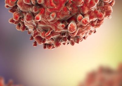 € 30 miljoen voor veelbelovend kankeronderzoek