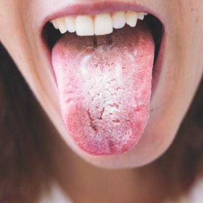 CBG: anidulafungine niet in vriezer bewaren