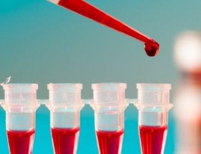 Nobelprijs voor ontdekkers hepatitis C-virus