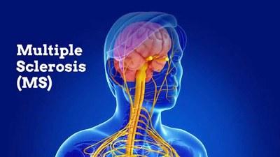 Ozanimod positief beoordeeld bij relapsing remitting multiple sclerose