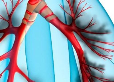 COPD-patiënten ervaren problemen met inhalator Duaklir Genuair
