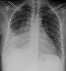 Pretomanid goedgekeurd voor resistente tuberculose