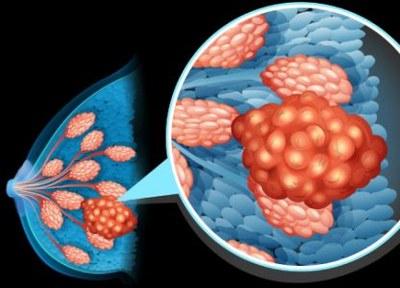 Verbeterde overleving bij hoog risico borstkanker