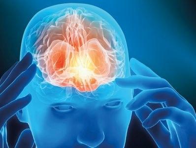 Nieuwe CGRP-remmers voor migraine in basispakket
