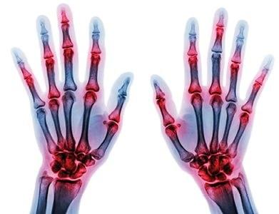 Patiënt en reumatoloog hebben verschillend beeld van bijwerkingen